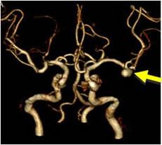 瘤 脳 動脈 脳動脈瘤|対象疾患|医療関係者へ|近畿大学医学部 脳神経外科